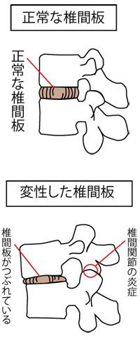正常な椎間板と変性した椎間板